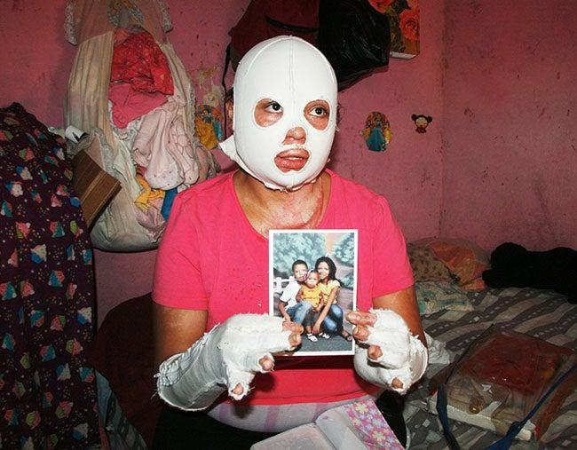 Honduras: Quemada en Feria lucha por su vida