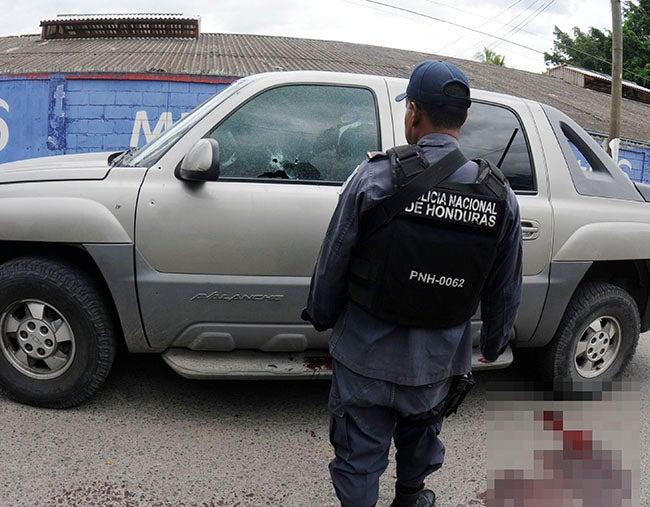 Muere en Hospital Escuela hombre herido en vehículo
