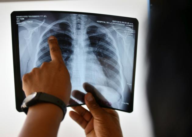 OMS señala avances mayores pero insuficientes contra la tuberculosis