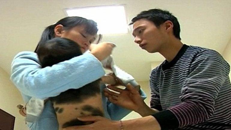 Preocupación en China por un bebé cubierto de vellos