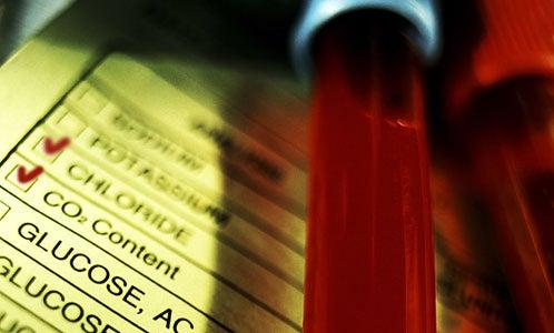 Investigan un test para detectar el cáncer de mama a través de una muestra de sangre