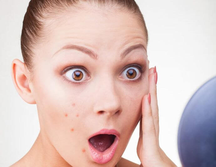 Cinco tratamientos caseros para combatir las espinillas