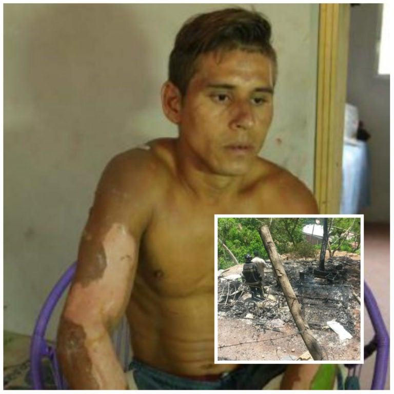 Joven salva a niña tras casi ser quemada en Villanueva, Cortés