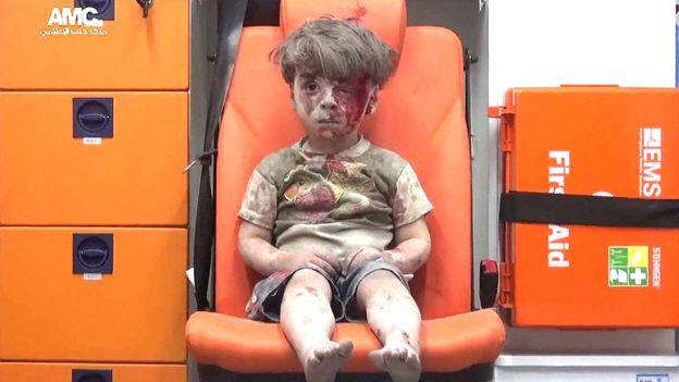 El niño rescatado de bombardeo en Siria; su imagen conmueve al mundo