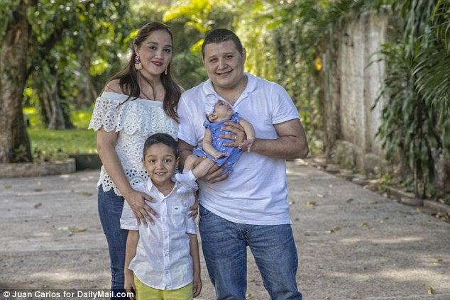Relato de padres de bebé hondureña nacida con Microcefalia en EEUU