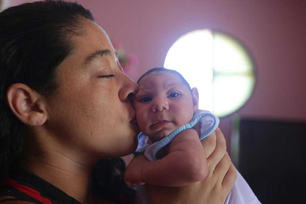 Niños con microcefalia