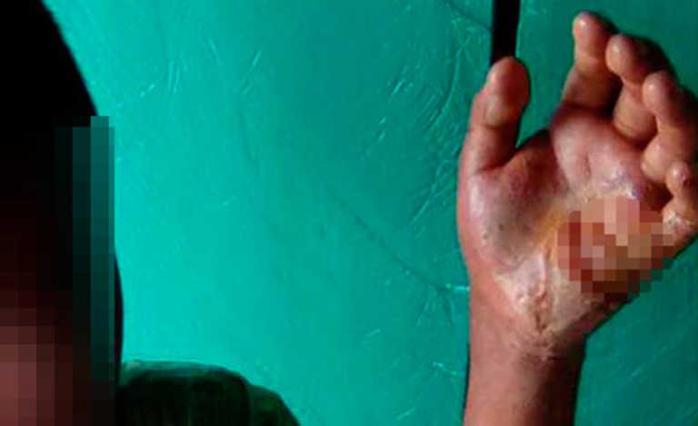 Santa Bárbara: Por desobedecer, madre le quema la mano a su hijo