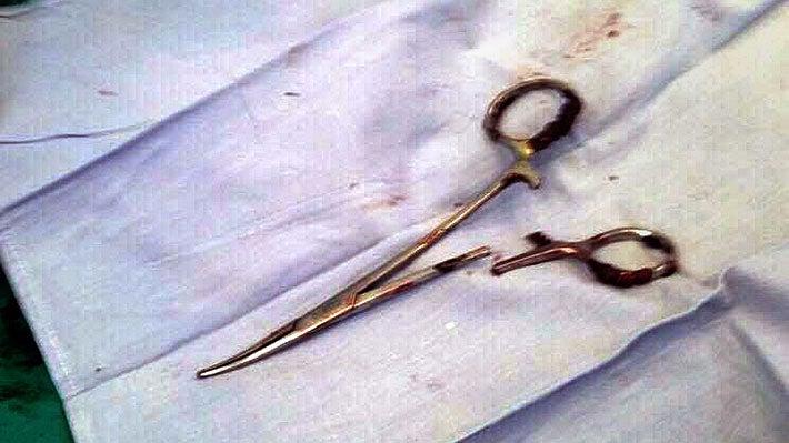 Hombre vivió 18 años con unas tijeras en su estómago