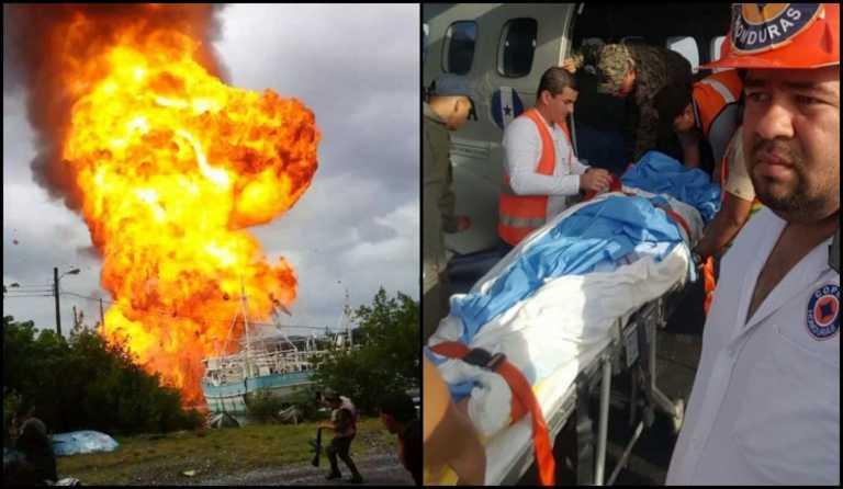 Llegan al HEU de Tegucigalpa personas quemadas en embarcación en Roatán