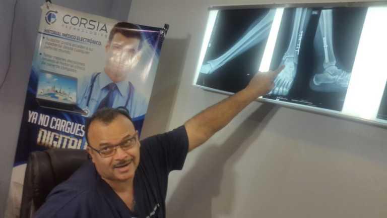 ¡Todo un éxito la operación realizada a Rubilio Castillo!