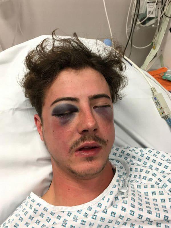 Ultras del Tottenham golpearon a un fanático de su mismo equipo creyendo que era del Chelsea