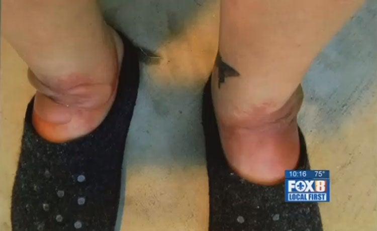 Mujer casi pierde los pies por usar unas sandalias de cuero