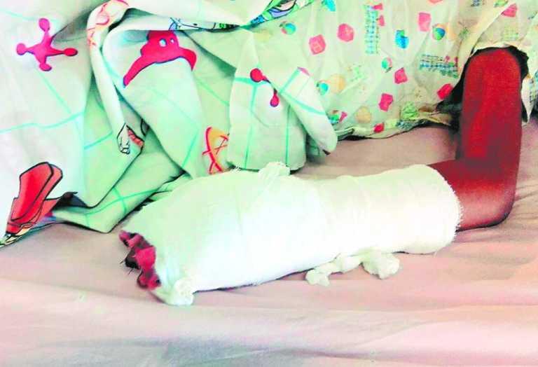 Tercer quemado por pólvora: niño de siete años ingresa al HEU