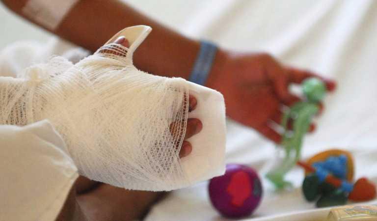 Época de Navidad deja 29 quemados por pólvora en Tegucigalpa y SPS