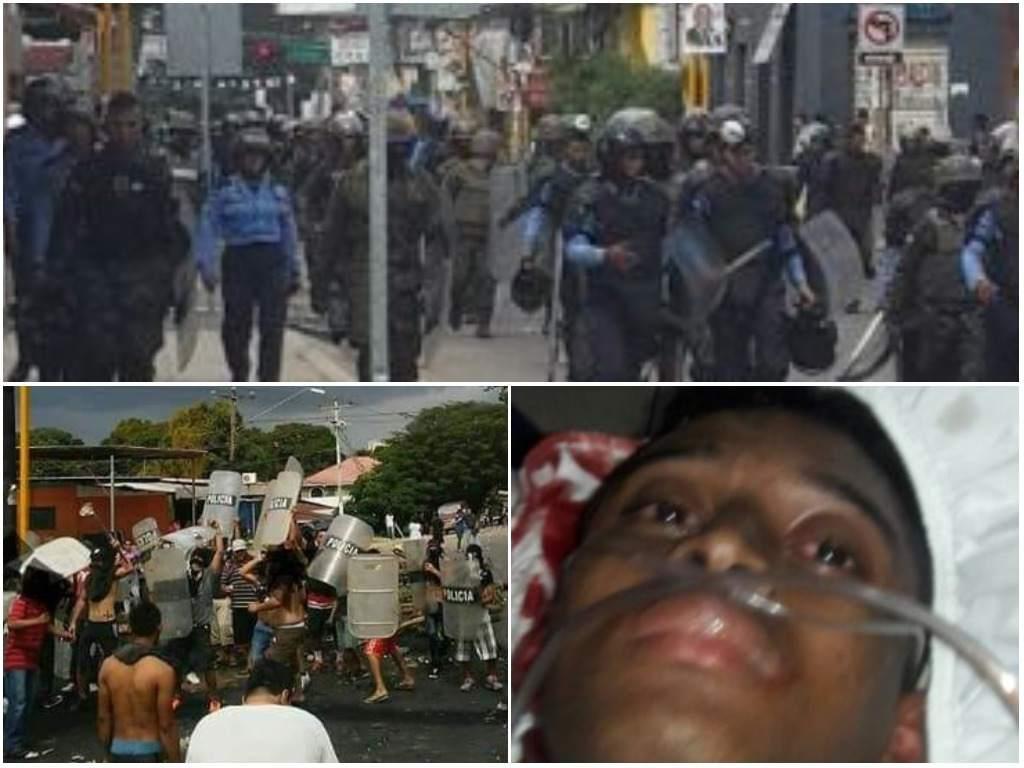 policía que fue herido en manifestaciones