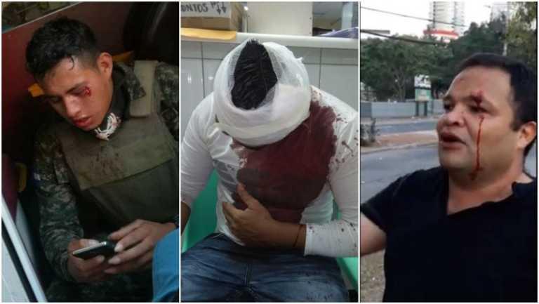 Enfrentamiento entre manifestantes y militares deja varios heridos en Tegucigalpa