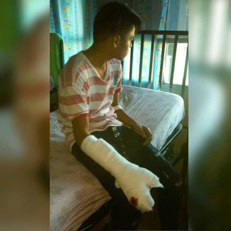 Salva a su primo, pero pierde un dedo de la mano tras reventarle un mortero