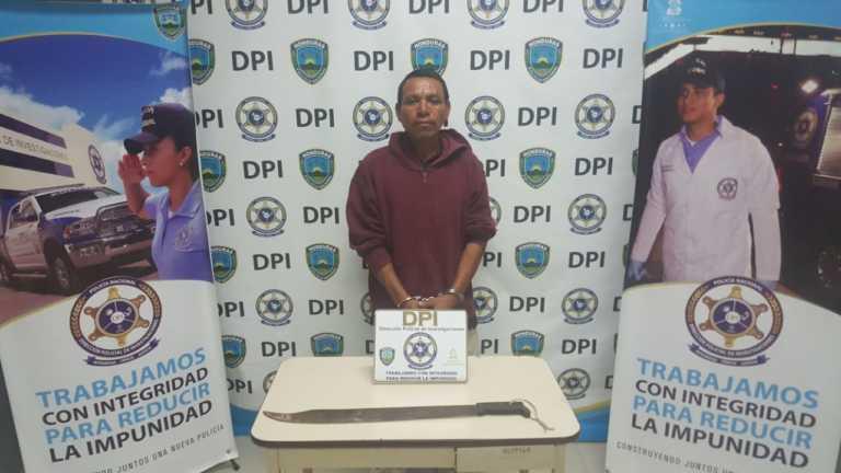 Comayagua: Lo detienen por cercenarle a mordidas la nariz a su vecino
