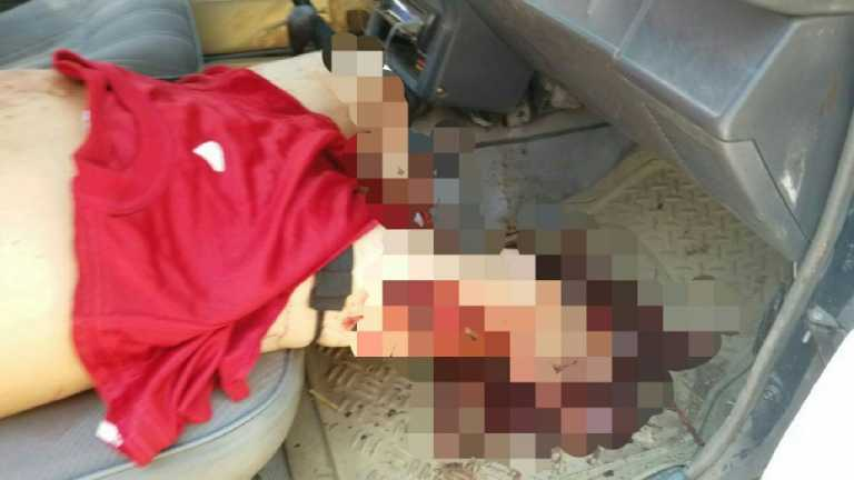 Copán: Muere luego que compañero de trabajo le cortara las piernas