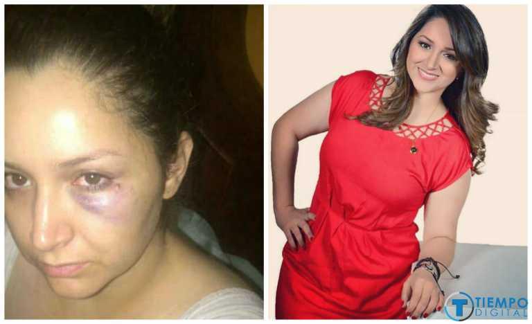 SPS: Un grito de esperanza busca empresaria maltratada por su esposo