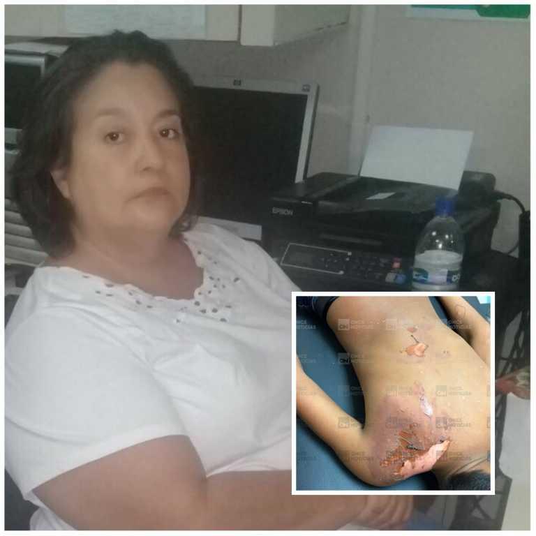 Dictan orden de detención contra señora que lanzó agua caliente a menor