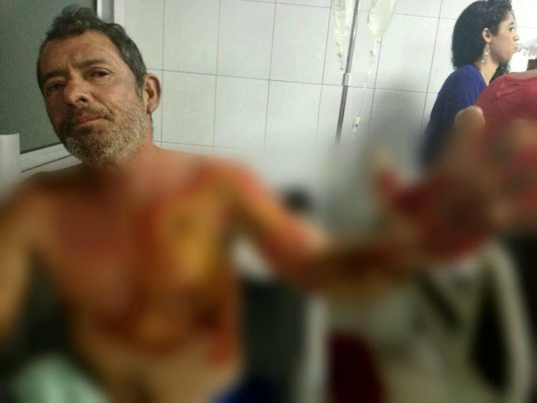 Llevó a su tío con quemaduras y por falta de atención murió en el Catarino Rivas