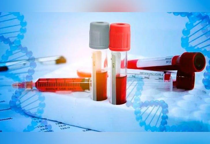 Se registra el primer caso de Hemofilia Adquirida en Honduras