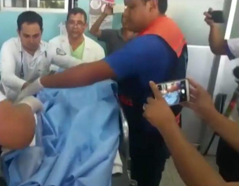 Estable niña que resultó quemada con chilate caliente en Choluteca