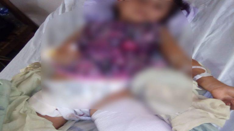 Por accidente, padre le corta el pie izquierdo a su hija en Olancho