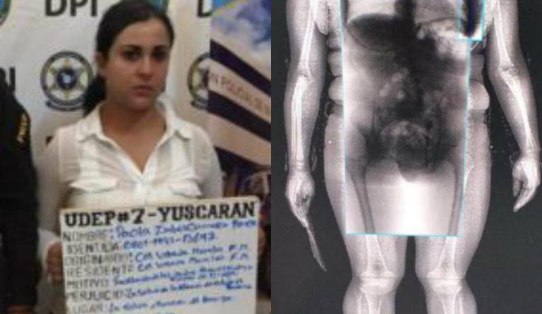 """Escondida en sus partes íntimas, mujer intenta introducir supuesta droga a """"El Pozo"""""""