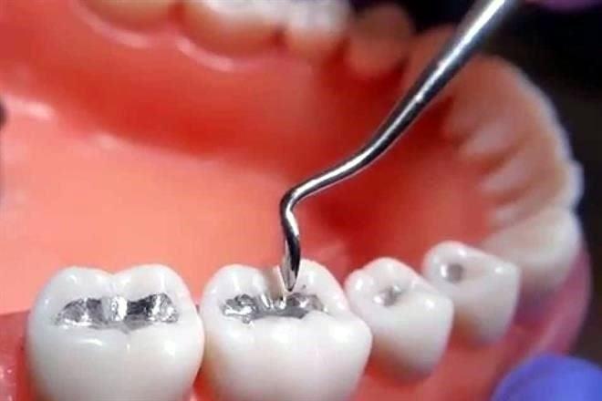 tapones dentales