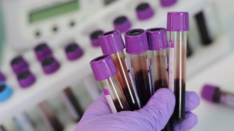 Crean método capaz de detectar el Alzheimer antes de que surjan síntomas clínicos