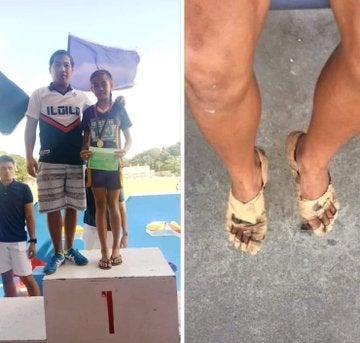 Viral: Niña gana tres medallas de oro usando solo vendajes en sus pies