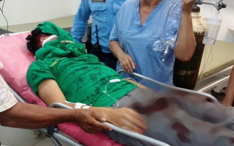 Choluteca: Joven pierde un ojo tras explosión de mortero en su cara