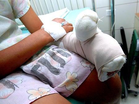 Joven sufre mutilación por pólvora; padre pagará multa por descuido