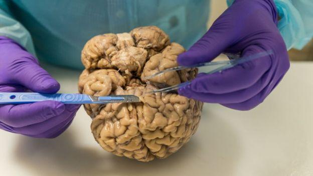 Cómo donar pedazos de cerebro a la ciencia antes de morir