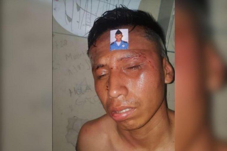 UNAH: golpean y desnudan a policía en manifestación