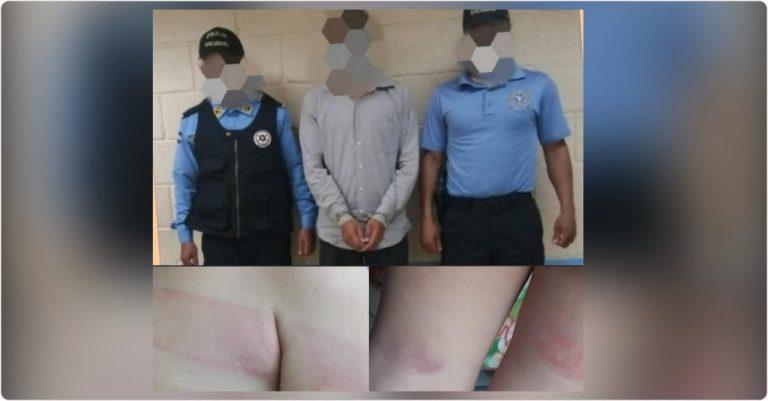 TGU: Arrestan a hombre por maltratar físicamente a su hijo de cuatro años