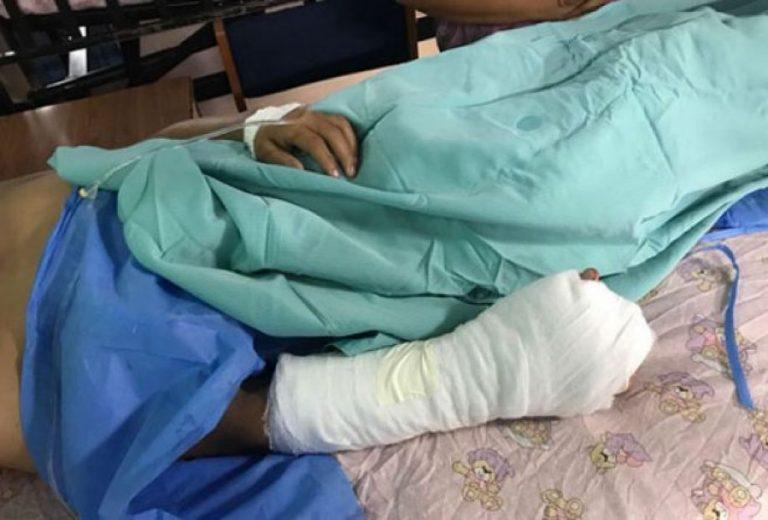 Fundaniquem: Niños que sufrieron quemaduras ya fueron sometidos a cirugía