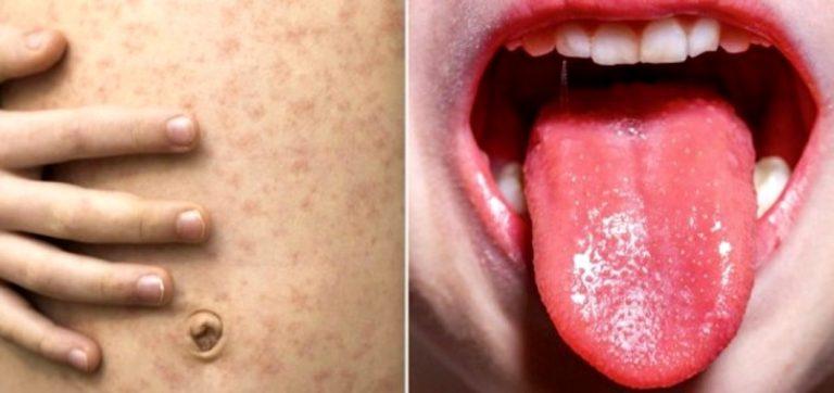 Cifras del coronavirus| Nuevo síntoma de COVID-19: ¿qué es un enantema?