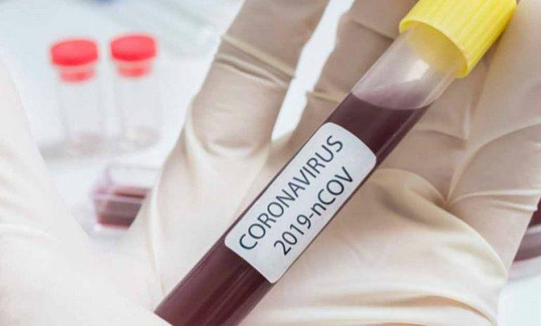 EEUU: COVID-19 desencadena cambios en las plaquetas de la sangre, según científicos