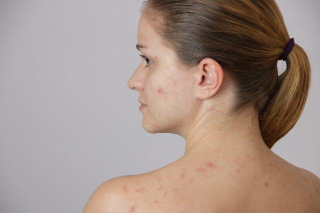 Varicela: no es solo sarpullido, conozca más síntomas que se presentan