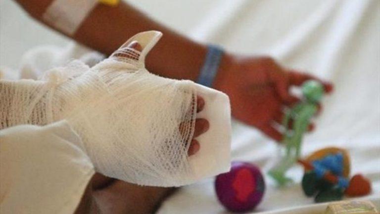 Detención judicial para madre que quemó las manos de su hijo por L 10
