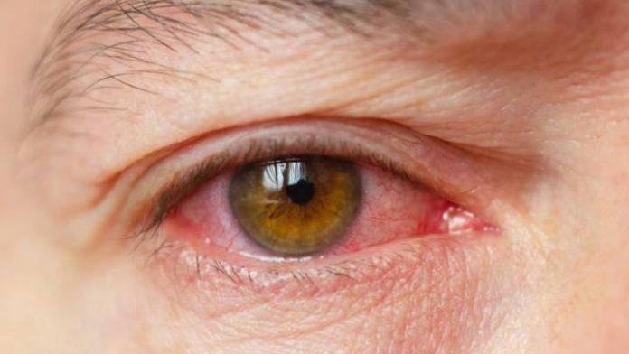 detectan covid en ojos