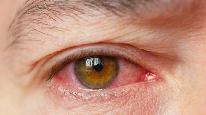 Sindrome del ojo seco sintomas