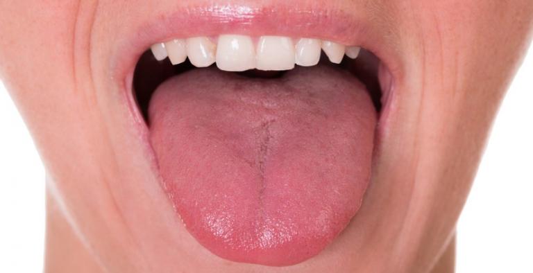 Cuida tu higiene bucal: nueve enfermedades pueden afectar tu lengua