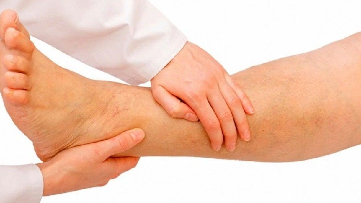 La isquemia tratamiento prevención