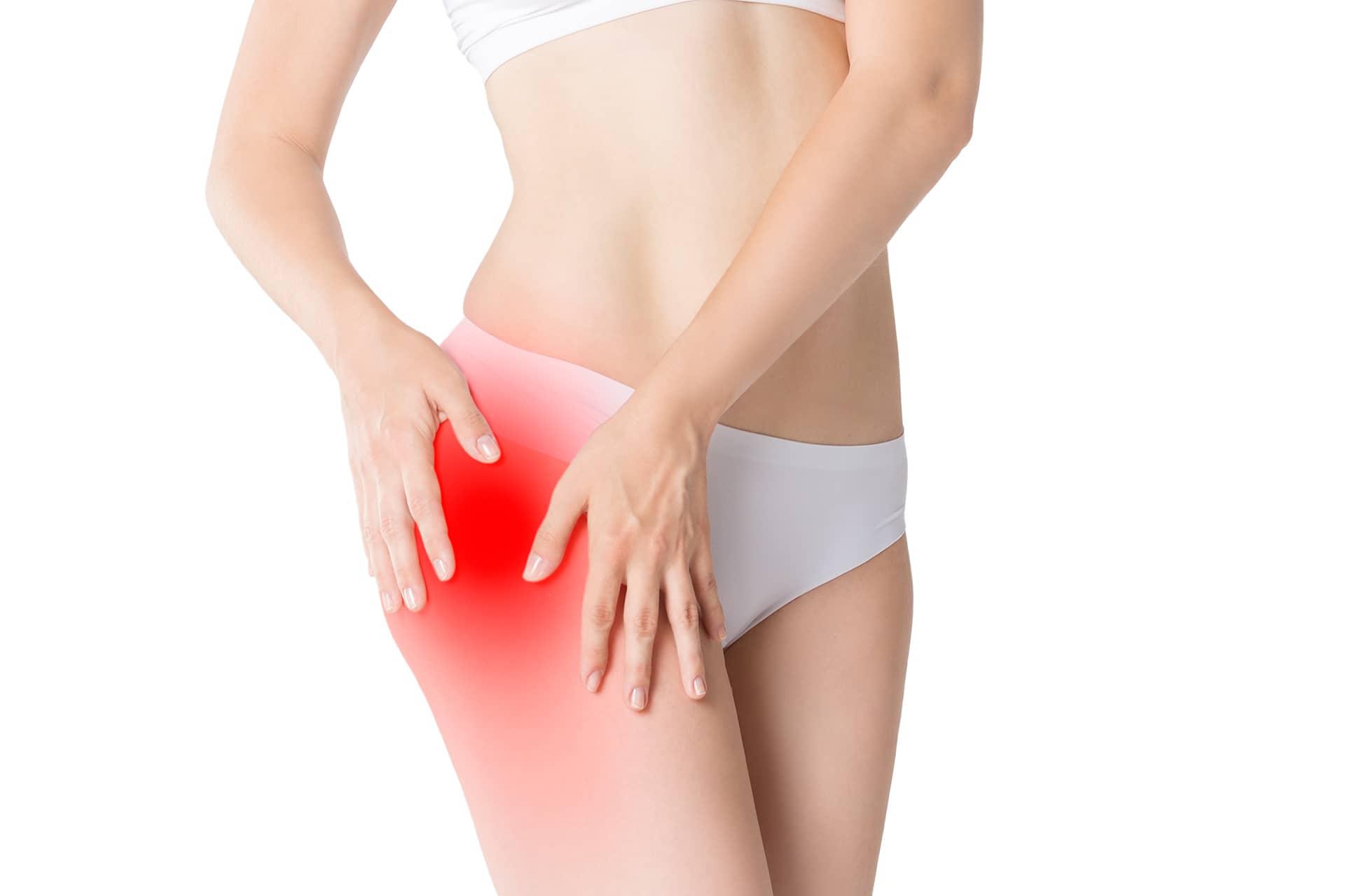 trocanteritis dolores musculares piernas