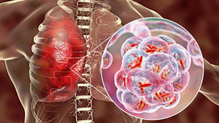 Disminución tuberculosis honduras