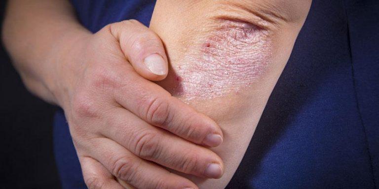 Salud –  Psoriasis y Artritis Psoriásica: su impacto invisible